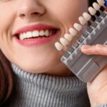 cosmetic_dental_bonding_Laguna_Hills